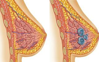Игх при раке молочной железы — расшифровка результатов