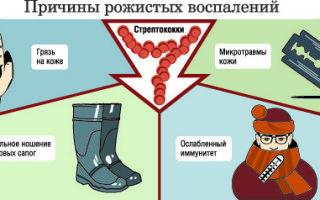 Рожа на ноге: причины появления, симптомы и лечение