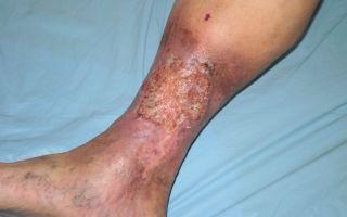 Пятна на ногах при сахарном диабете: фото, причины появления и лечение
