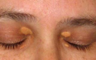 Пятна на веках глаз: что это такое, фото образований и методы лечения