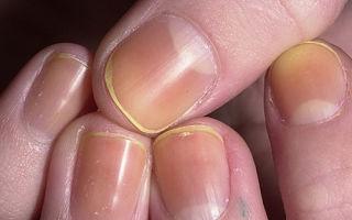 Желтые пятна на ногтях рук и ног: почему появляются, как избавиться