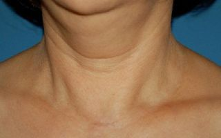 Симптомы заболевания паращитовидной железы у женщин