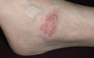 Экзема на ногах: фото, симптомы и лечение