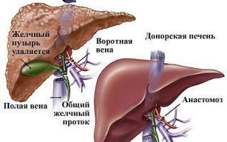Вторичный билиарный цирроз печени — причины, симптомы, диагностика и лечение