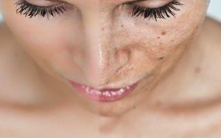 Пигментные пятна на коже во время беременности: норма или патология?