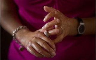 Ограниченная и системная склеродермия: симптомы, лечение и прогноз