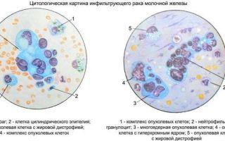 Цитология молочной железы: что это такое, показания, методика проведения и осложнения