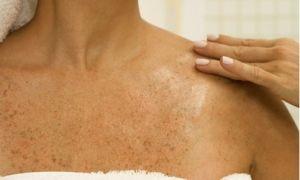 Оранжевые пятна на коже: причины появления, чем лечить