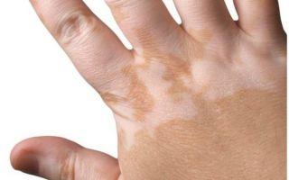 Белые пятна на коже, руках, ногах, теле, у детей: фото, почему появляются, как избавиться