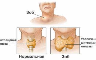 Как проверить щитовидную железу в домашних условиях