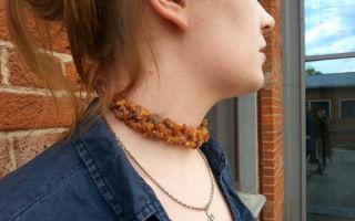 Бусы из янтаря при заболеваниях щитовидной железы