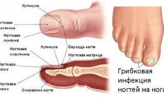 Волдырь с жидкостью на руках и ногах у взрослых и детей: причины появления и лечение