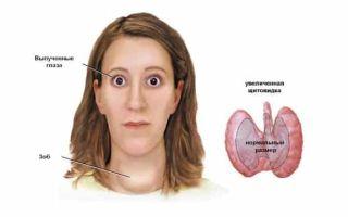 Диффузный токсический зоб — причины, симптомы, диагностика и лечение