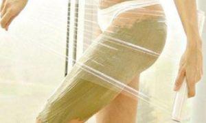 Пятна на ногах и попе: фото, причины появления и лечение