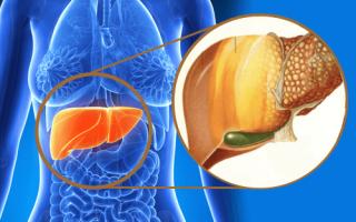 Саркома печени — причины, симптомы, диагностика и лечение