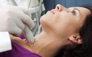 Глазные симптомы диффузного токсичекого зоба (тиреотоксикоза). причины, патогенез и лечение глазных симптомов тиреотоксикоза
