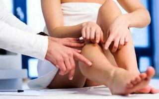 Белые пятна на ногтях ног: что это, как избавиться?