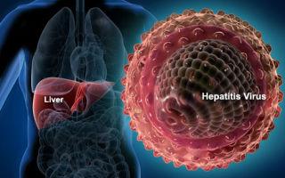 Хронический вирусный гепатит — причины, симптомы, диагностика и лечение