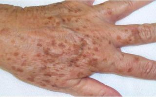 Пятна с шелушением на коже: почему появляются, как избавиться