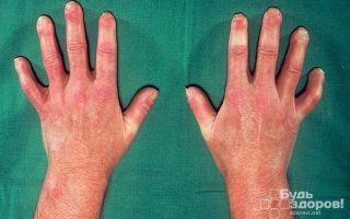 Системная склеродермия: как развивается, симптомы, продолжительность жизни
