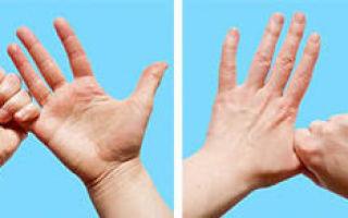Пятно на безымянном пальце: что означает, причины появления, народные приметы