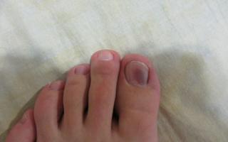 Красные пятна на пальцах рук и ног: фото, причины появления и лечение