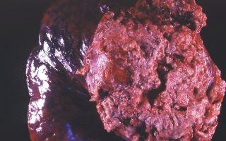 Ангиосаркома печени — причины, симптомы, диагностика и лечение