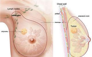 Саркома молочной железы — причины, симптомы, диагностика и лечение