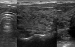 Допплерография щитовидной железы — диагностика болезней органа