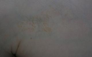 Бордовые пятна на коже: почему образуются, чем лечить