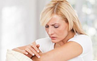 Народное лечение экземы: самые эффективные методы