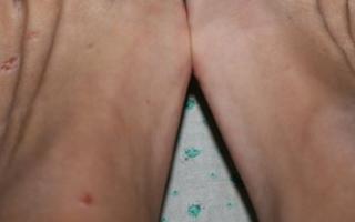 Волдыри на ступнях ног: причины и лечение