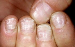О чем говорят красные пятна на ногтях?