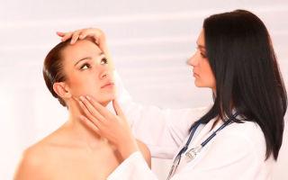Симптомы угревой сыпи, причины появления и лечение
