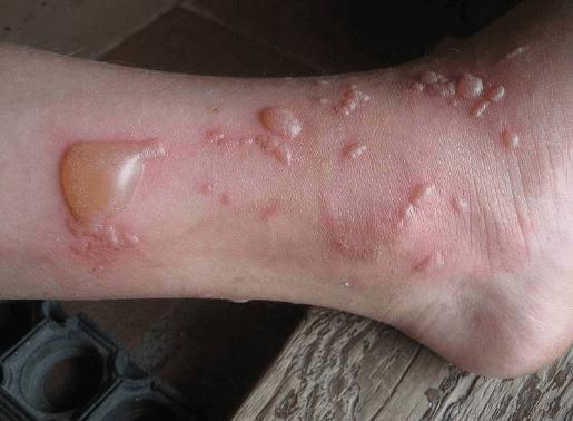 Волдырь с жидкостью на руках и ногах, лечение водянистых волдырей у ребенка