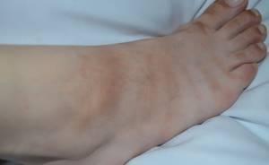 Пятно на косточке ноги или руки