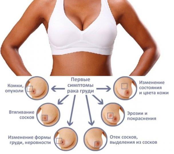 Пятна на ребрах и грудной клетке