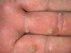 Пятна на коже с волдырями