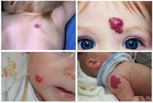 Пигментные пятна на теле, рук и ног, на коже под глазами у ребенка