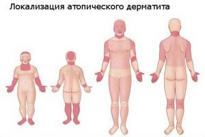 Как выглядит атопический дерматит?