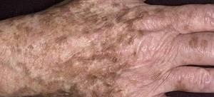 Ярко пятно на коже