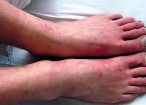 Бляшки на ногах и руках