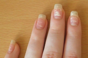 Пятна на указательном пальце
