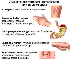 Системная склеродермия: продолжительность жизни