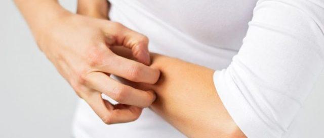 Пятна на теле при болезнях печени