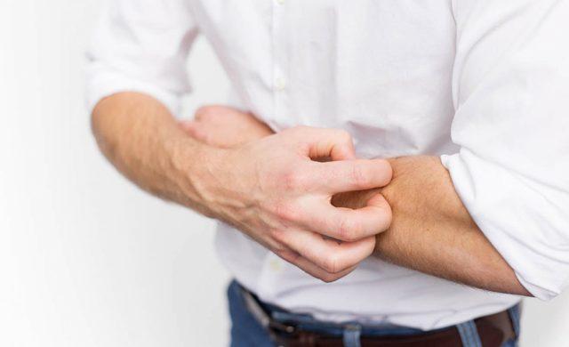 У меня дерматит — что делать?