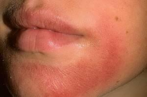 Дерматит кожи лица и головы у детей