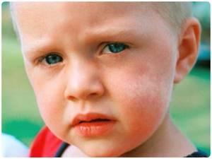 Почему появляются белые пятна на коже, руках, ногах, теле, у детей
