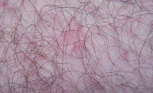 Красные волдыри на теле, руках и ногах, лице: лечение