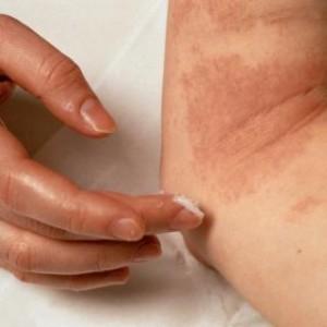 Лечение нейродермита в домашних условиях народными средствами